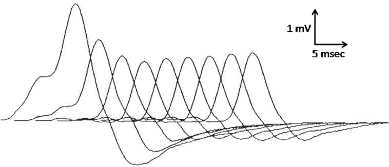 Figure 4: A prototype decrementing response to repetitive nerve stimulation in myasthenia gravis. The amplitude of the initial response is normal, and the decrement is maximal in the fourth response after which the responses may increase slightly, giving an envelope shape to the train of responses