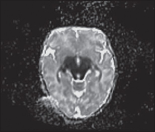 Figure 4: Axial apparent diffusion coefficient (ADC) shows restricted diffusion in midbrain