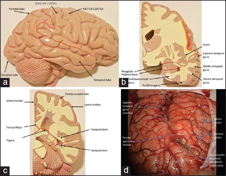 Figure 1: Diagrammatic representation of cortical incision for periinsular quadrantectomy (a), resection of amygdala (b), and intraventricular stage representing sectioning of callosalsplenial connections (c), Intraoperative photomicrograph showing the complete posterior quadrant disconnection (d)