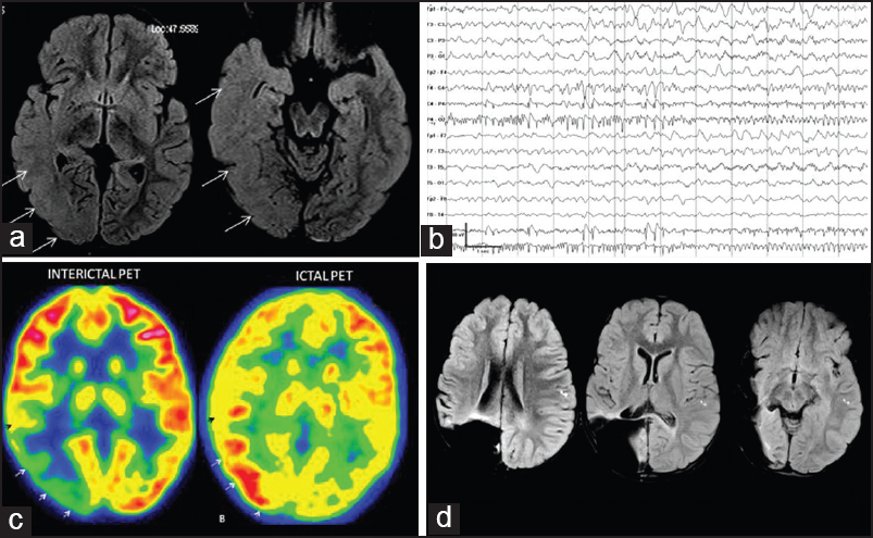 Figure 4: A 4-year-old girl with medically refractory daily seizures of 2 years duration [Case 3-see Table 1]. MRI showed