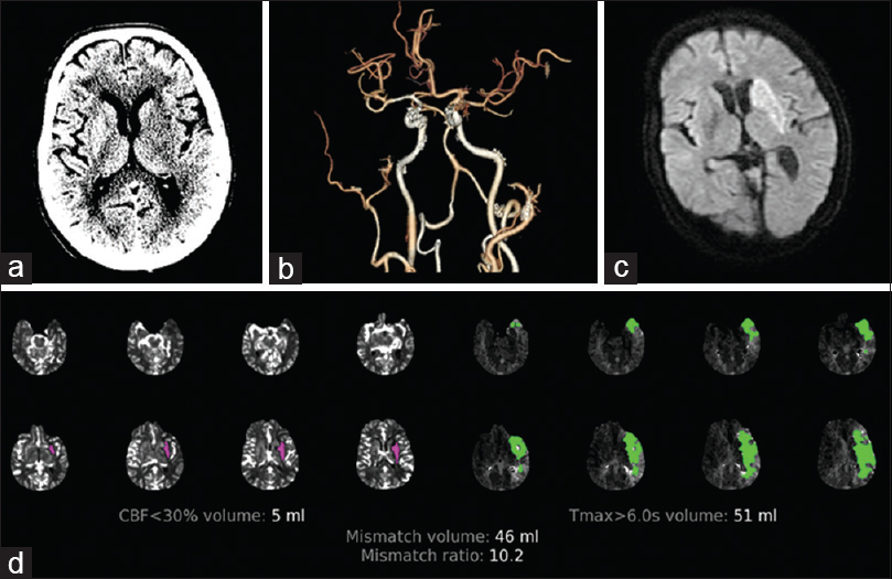 Figure 3: A 61-year-old male with left middle cerebral artery territory stroke. (a) Computed tomography brain shows hypoattenuation in the left basal ganglia. (b) Reconstructed computed tomography angiogram showing left middle cerebral artery occlusion. (c) Diffusion-weighted imaging after 24 h shows infarct corresponding to the ischemic core. (d) Rapid processing of perfusion and diffusion images showing a small core and large penumbra