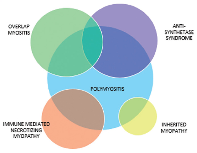 Figure 5: Pure polymyositis is a rare entity. It is recognized to be a part of overlap myositis, antisynthetase syndrome, immune-mediated necrotizing myopathy. Inherited myopathy may mimic polymyositis