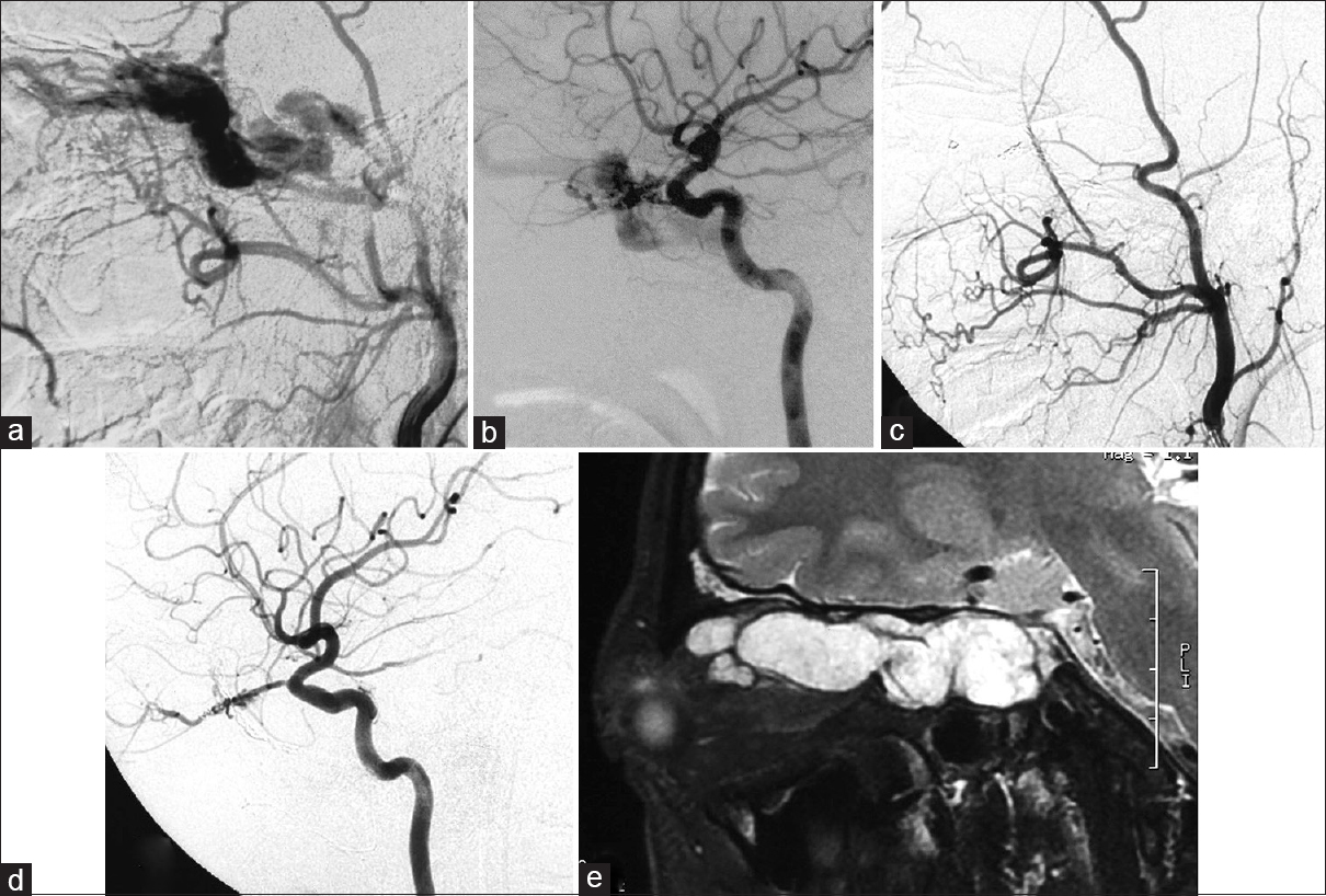 Figure 1: An 18-year-old man underwent embolization of a cavernous sinus. The external (a) and internal (b) carotid artery angiograms showing a dural AVF with multiple arterial feeders from the right middle meningeal artery, as well as a smaller contribution from the right ophthalmic artery. 3 years after the second treatment, the external (c) and internal (d) carotid artery angiograms demonstrating a residual dural fistula with a smaller contribution from the right ophthalmic artery. MRI (e) revealed prominence of the right superior ophthalmic vein