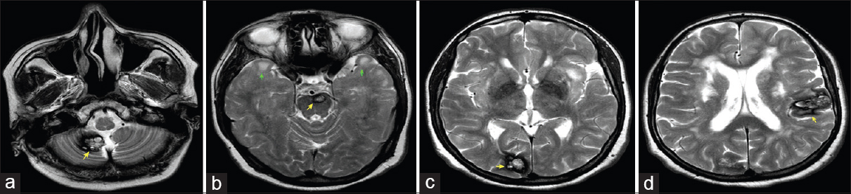 Figure 2: Axial T2 image of brain showing multiple cavernomas (yellow arrows) in the right cerebellar hemisphere (a), left pons (b), right occipital region (c) and left parietal region (d). Note bilateral anterior temporal hyperintensities (green arrows) characteristic of CADASIL (b)